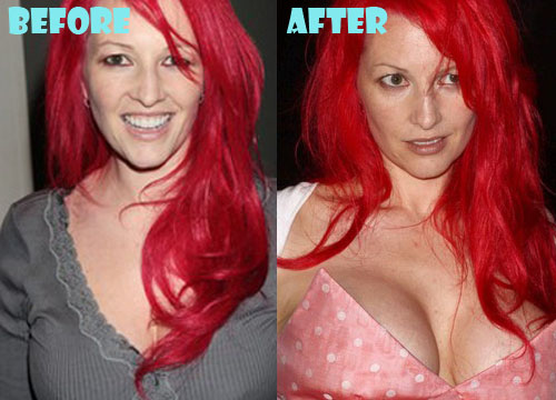 Jane Goldman Plastic Surgery Breast Implant