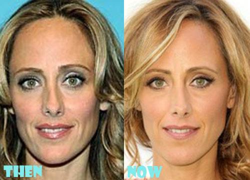 Kim Raver Plastic Surgery Botox