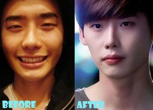 Lee Jong Suk Plastic Surgery