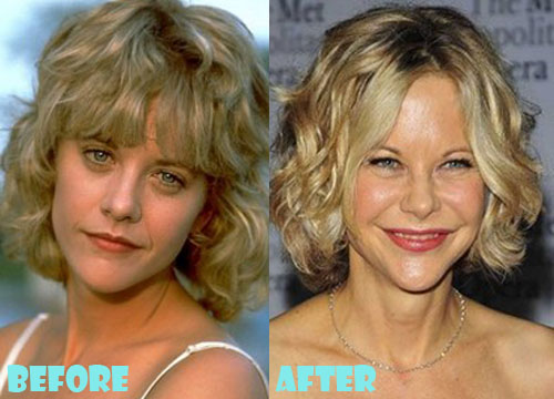 Meg Ryan Plastic Surgery
