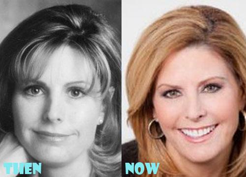 Nina Easton Plastic Surgery