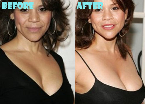 Rosie Perez Plastic Surgery Breast Implant Before and After