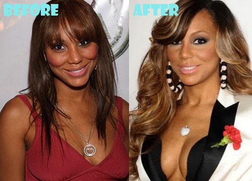 Tamar Braxton Plastic Surgery Breast Implant
