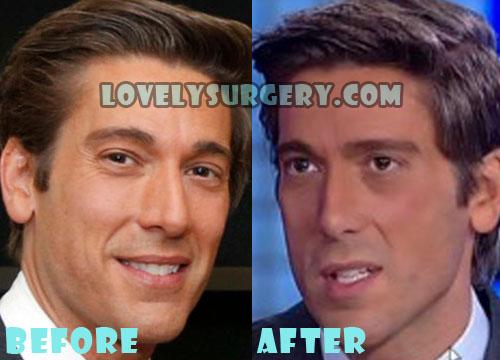 David Muir Plastic Surgery Nose Job