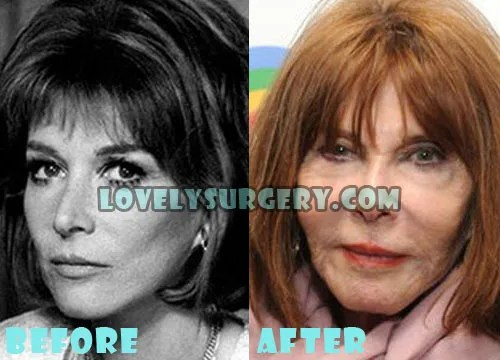 Lee Grant Plastic Surgery