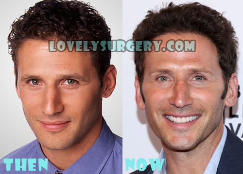 Mark Feuerstein Plastic Surgery Botox