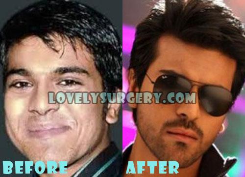Ram Charan Teja Plastic Surgery