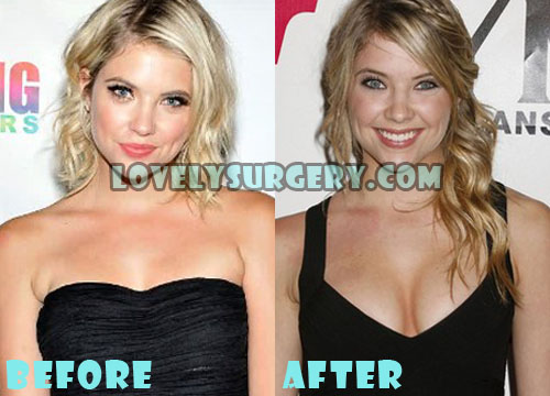 Ashley Benson Plastic Surgery