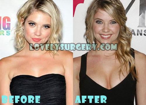 Ashley Benson Plastic Surgery