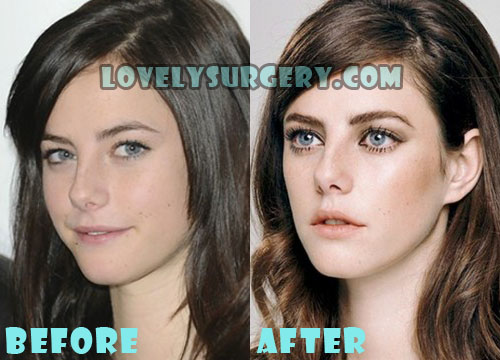 Kaya Scodelario Plastic Surgery Nose Job