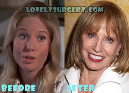 Leslie Charleson Plastic Surgery Botox, Facelift