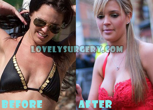 Danielle Lloyd Plastic Surgery Breast Implant