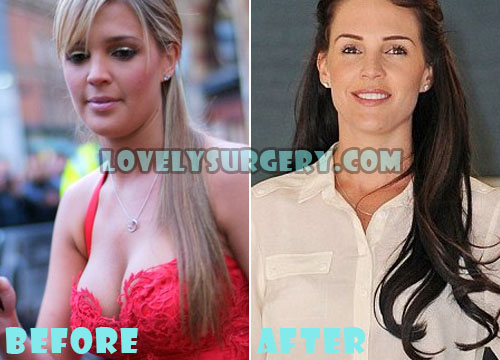 Danielle Lloyd Plastic Surgery Breast Reduction
