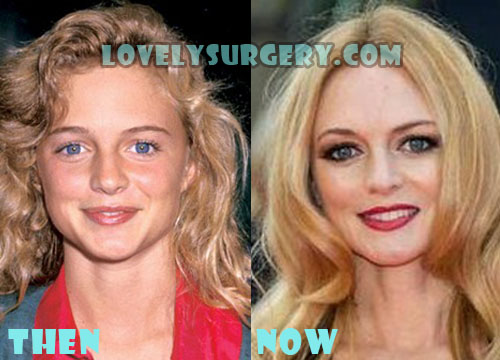 Heather Graham Plastic Surgery Botox