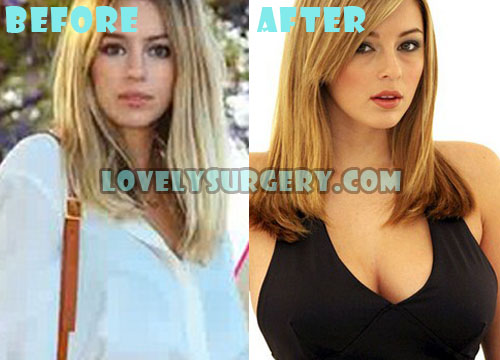 Keeley Hazell Plastic Surgery Boob Job