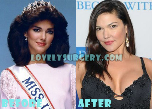 Laura Harring Plastic Surgery Boob Job