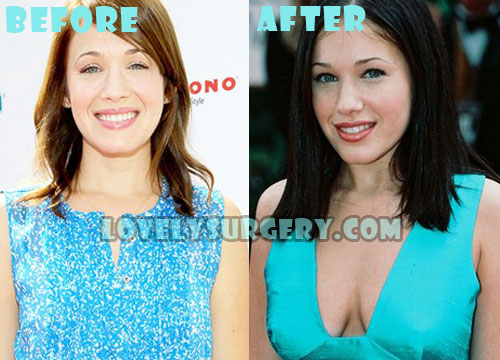 Marla Sokoloff Plastic Surgery Boob Job