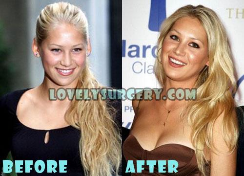 Anna Kournikova Plastic Surgery Breast Implant