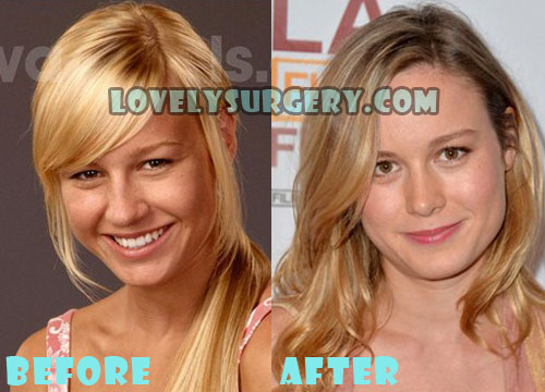 Brie Larson Plastic Surgery Nose Job