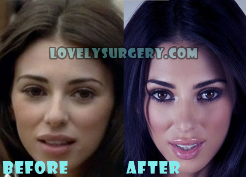 Georgia Salpa Plastic Surgery Lip Injection