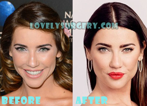 Jacqueline MacInnes Wood Plastic Surgery Lip Job