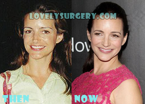 Kristin Davis Plastic Surgery Botox