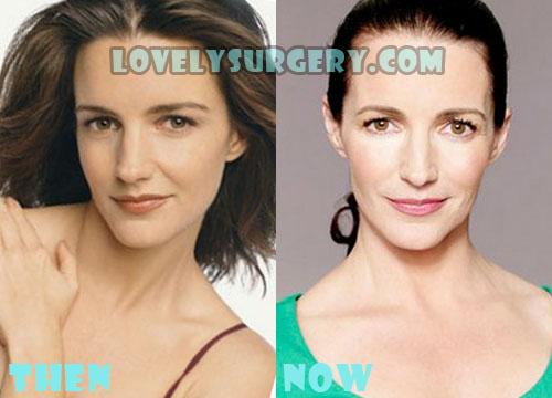 Kristin Davis Plastic Surgery