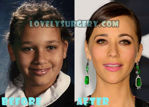 Rashida Jones Plastic Surgery Nose Job