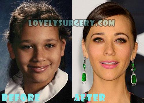 Rashida Jones Plastic Surgery Nose Job