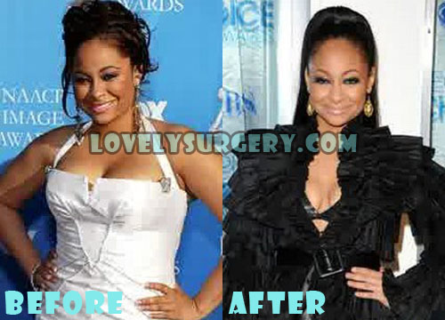 Raven Symone Plastic Surgery Breast Reduction