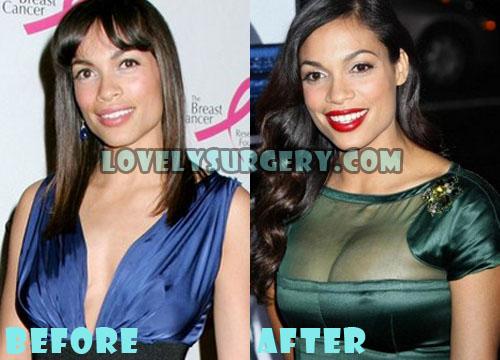 Rosario Dawson Plastic Surgery Boob Job