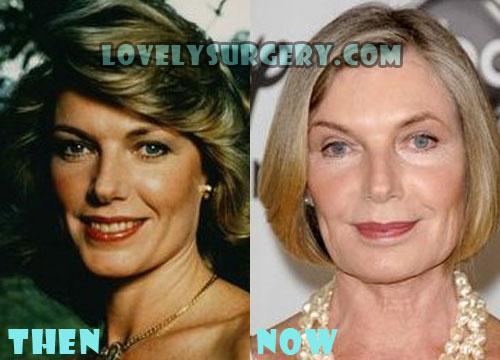Susan Sullivan Plastic Surgery Facelift