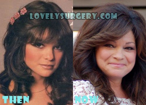 Valerie Bertinelli Plastic Surgery Facelift