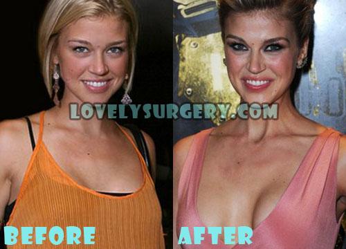 Adrianne Palicki Plastic Surgery Boob Job