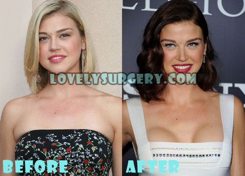 Adrianne Palicki Plastic Surgery Breast Implant