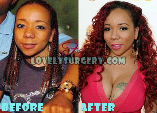 Tameka Cottle Plastic Surgery Boob Job