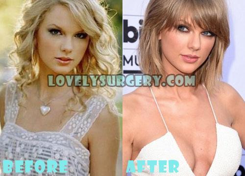 Taylor Swift Plastic Surgery Boob Job
