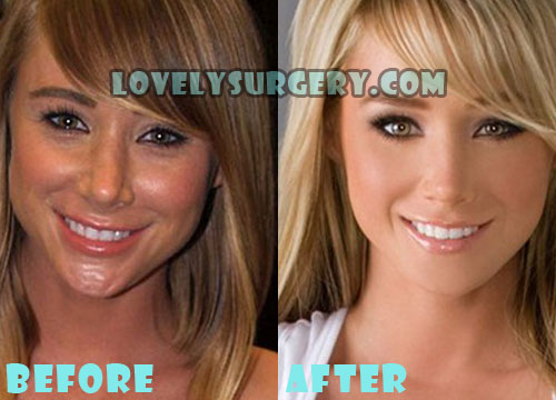 Sara Jean Underwood Plastic Surgery Nose Job