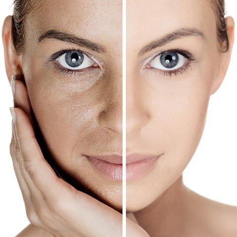 Detox Skin
