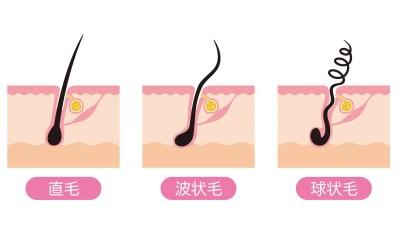 毛根の種類 くせ毛