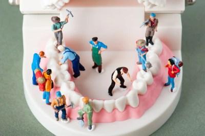歯の状態をチェックするイメージ