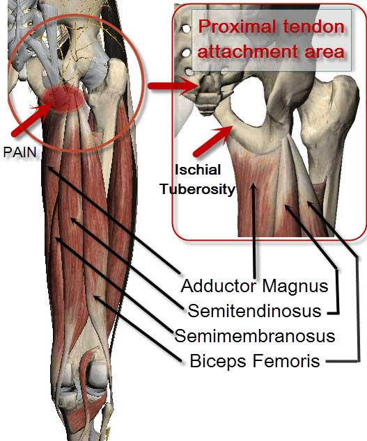 Sitbone Pain From Yoga Asana Love Yoga Anatomy