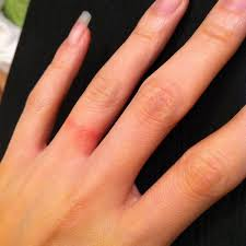hypoallergenic-ring