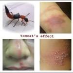 Pertolongan Pertama Akibat Cairan Serangga Tomcat