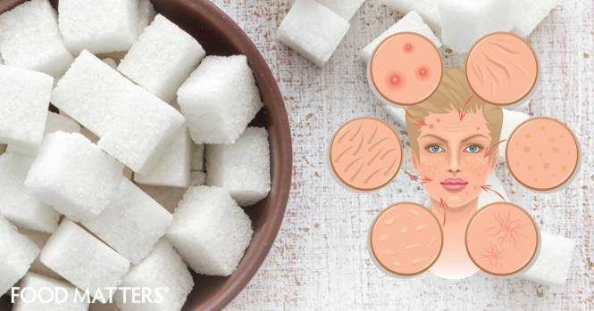 food_matters_june_30_09_you-may-never-eat-sugar-again-after-you-know-what-it-does-to-your-skin