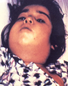 """child with diphtheria presented with a characteristic swollen neck, sometimes referred to as """"bull neck"""". Diphtheria is an acute bacterial disease involving primarily the tonsils, pharynx, larynx, nose, skin, and at times other mucous membranes. The mucosal lesion is marked by a patch or patches of an adherent grayish membrane with a surrounding inflammation."""