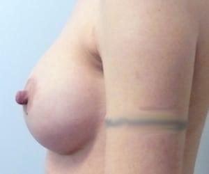 3 post rot retromuscolare