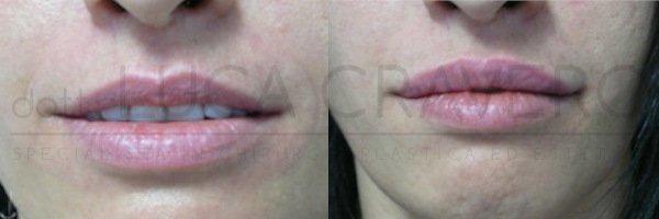 Filler labbra [foto] 1.4 - Dr. Cravero
