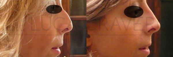 Rinofiller. Correzione del naso senza chirurgia [foto] 3.2
