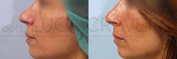 Rinofiller. Correzione del naso senza chirurgia [foto] 5.1